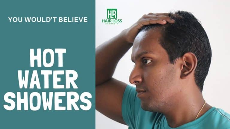 Do Hot Water Showers Cause Hair Loss