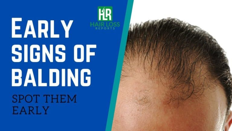 Spot The Early Signs of Balding – Am I Going Bald