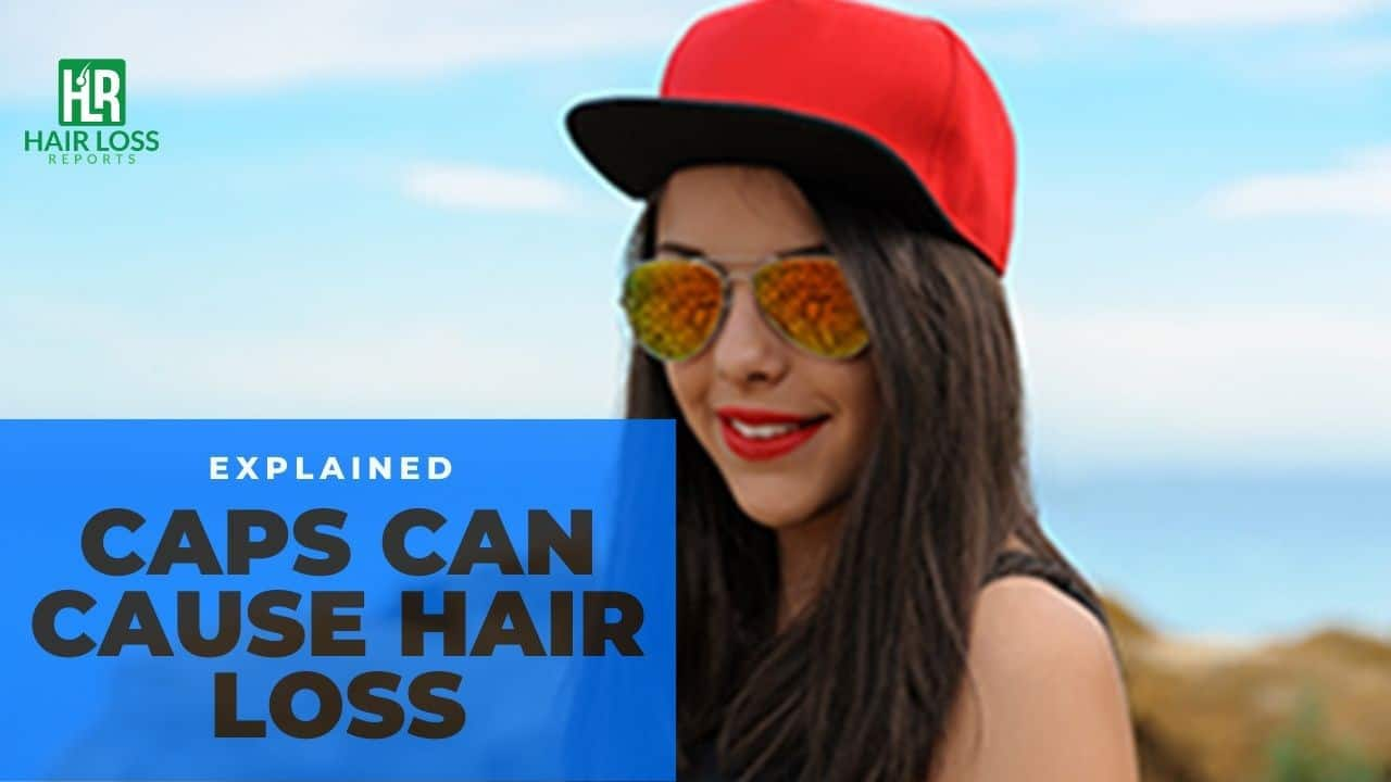 Does wearing a hat cause hair loss