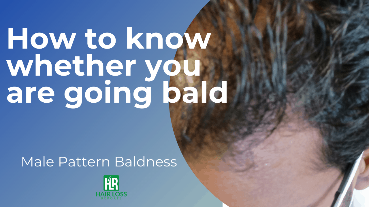 How To Know If You Are Balding – Men Must Know