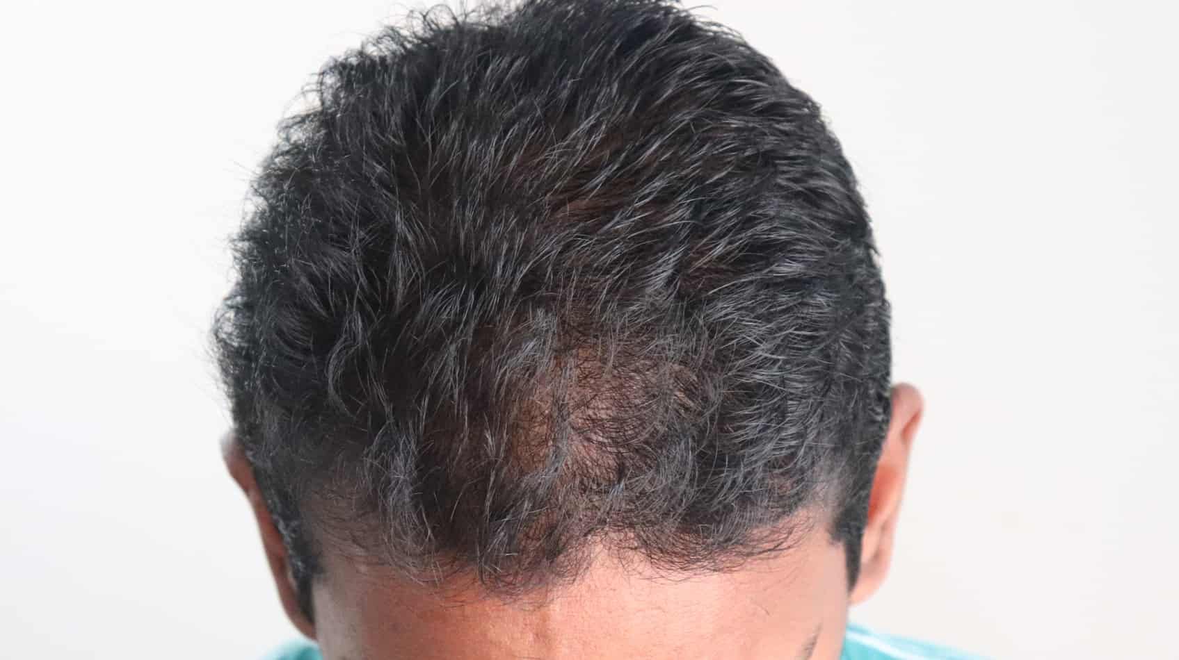 Hair thinning in front a sign of balding